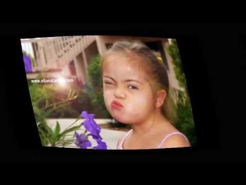 Veure vídeoSíndrome de Down: Tú me cambiaste la vida