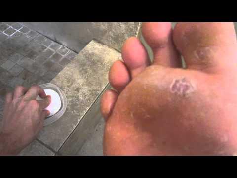 Toe nail treatment gribog