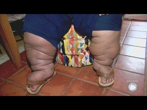 Dnc perdita di peso rosemead