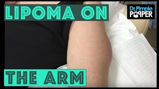 A Lipoma International on the Arm!