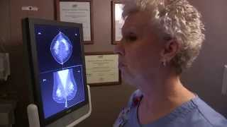 3D Mammography Saved Her Life