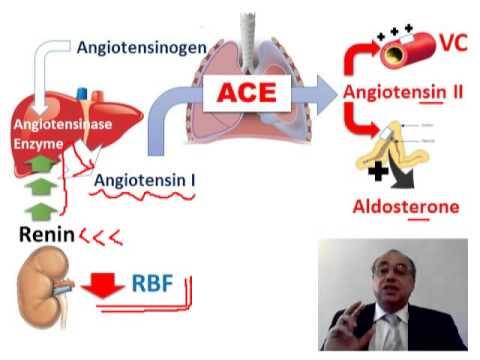 Lasix und hypertensive Krise