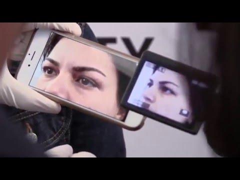 Plexr Soft Surgery at Epilight New Skin Clinic