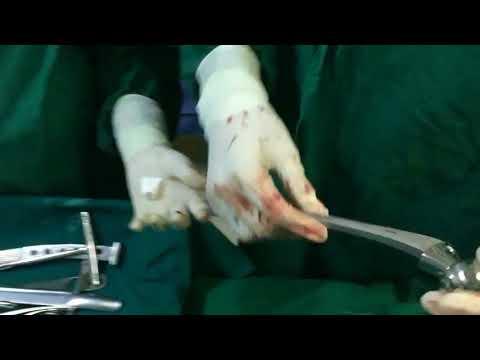 Der Abstand von der Verbindungsstelle des M. biceps