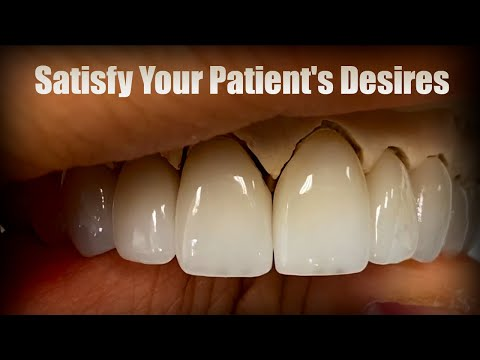 Demonstration: How to Create Dental Art That Completely Satisfies Patients