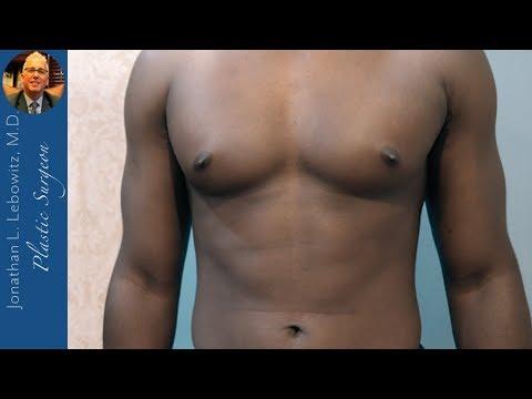Kiek numesti svorio per 3 savaites