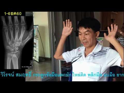 โรคสะเก็ดเงินครีมด้วยมือของพวกเขา