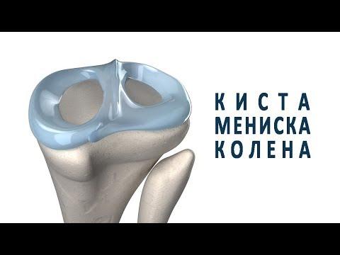 Что такое киста мениска коленного сустава?
