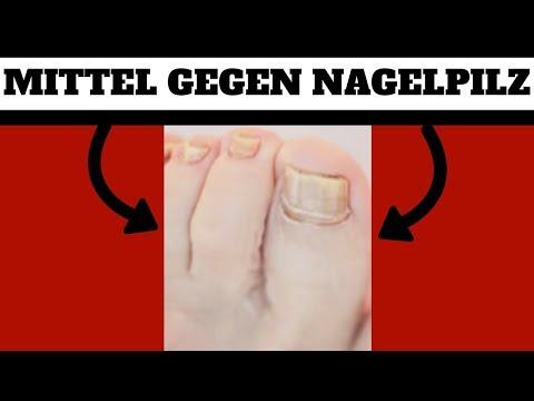 Die ergebnisreiche Behandlung gribka der Nägel auf den Beinen das Forum