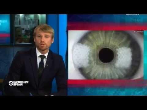 Черные круги под глазами во время беременности