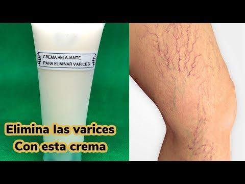Edema picioare varicoase în timpul sarcinii