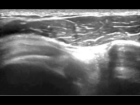 Tonsillite e mal di collo