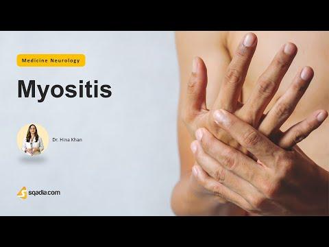 Artrita artroza genunchiului ce este