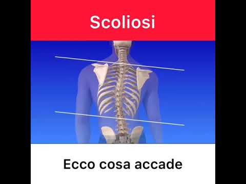 Video di esercizi terapeutici in osteocondrosi lombare