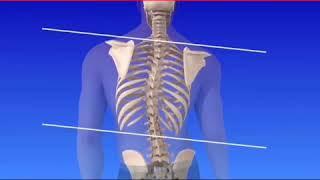 Scoliosi: guarda cosa accade in questa patologia
