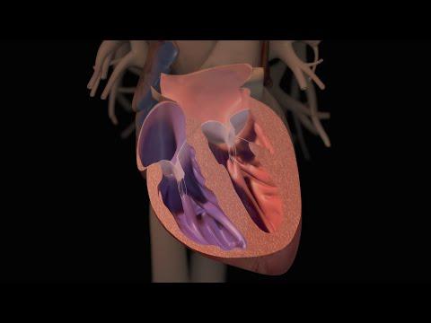 Vindecarea de diabet de tip 2