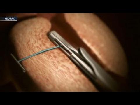 Brennnessel in der Behandlung von Prostatitis