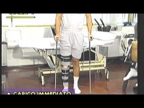 Grasso corporeo al ginocchio