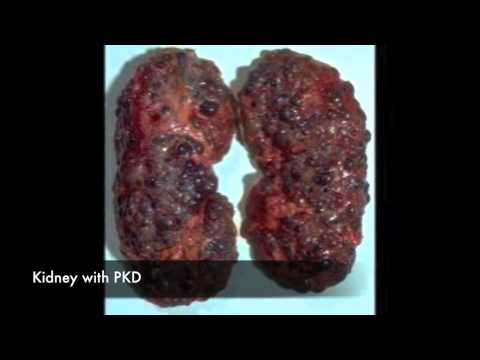 Video Polycystic Kidney Disease - Treatment, Symptoms & Causes