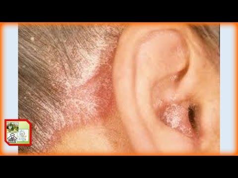 Códigos mkb eczemas