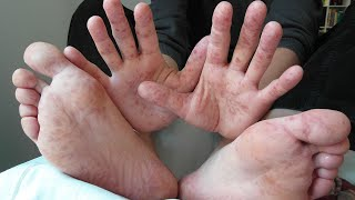 What Causes Hand Foot Mouth Disease?