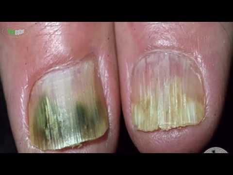 Curamos el hongo sobre los dedos de los pies