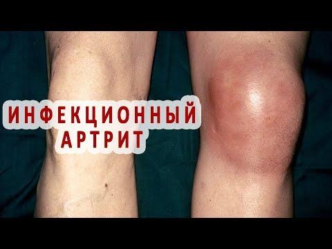 Что нужно знать об инфекционном артрите
