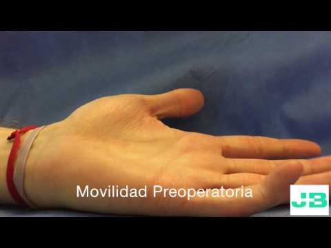 Los mejores complejos con el tratamiento de la columna vertebral y las articulaciones