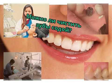 Можно ли чистить зубы содой?