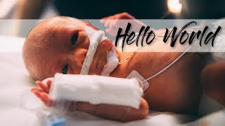 Judah Lion | 30 Weeks Baby Delivery