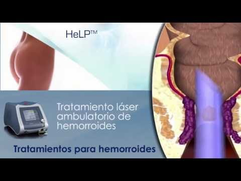 Alfa bloccanti nel trattamento di adenoma prostatico