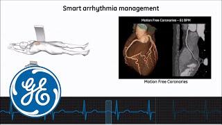 Revolution CT cardiac scanning