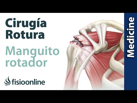 Sello osteocondrosis