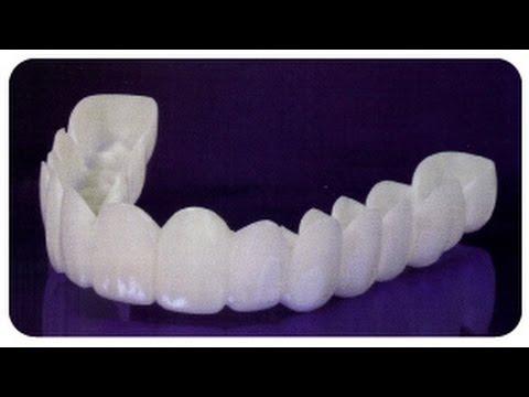 provisionales dentales estéticos
