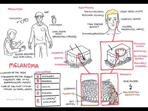 Czerniak- obraz chorobowy, patologia, czynniki ryzyka, leczenie