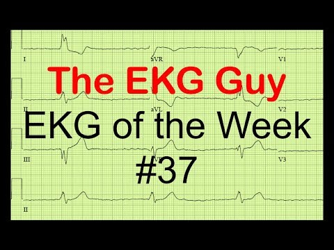 EKG of the Week #37