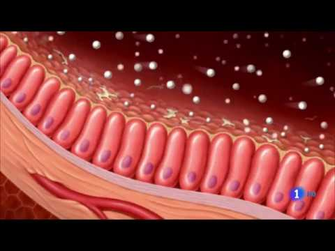 Endometrial cancer in premenopausal