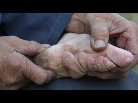 Download Chinese Foot Binding HD Mp4 3GP Video and MP3