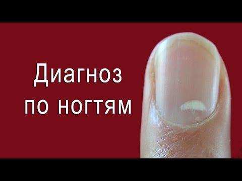 Диагноз по ногтям с примерами на фото. Диагностика по ногтям