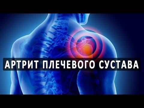Что нужно знать об артрите плечевого сустава