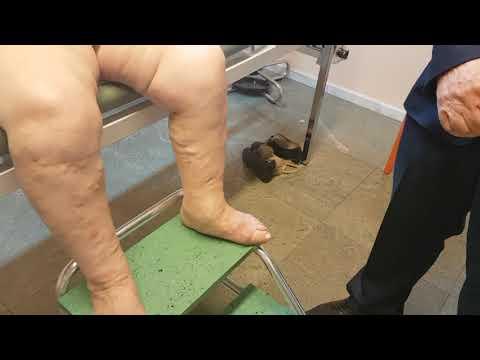 De ce mâncărime în timpul piciorului varicos