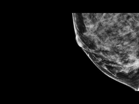 Hpv e cancer de pulmao