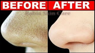 How To Get Rid of LARGE PORES in 3 Days ||  Best Home Remedies For Open Pores Treatment