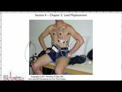 Interpretacja EKG - Nieprawidłowe Umieszczenie Elektrod, 4-3