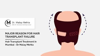 Avail The Top Quality Hair Transplant Treatment in Mumbai