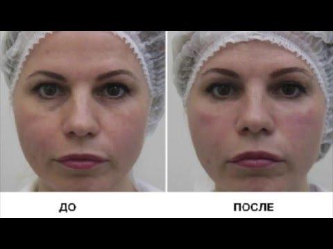 Увлажняющие кремы для лица от морщин