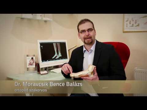 Betegek áttekintése a csípőízület artrózisának kezeléséről