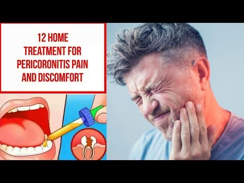 12 Home Treatment For Pericoronitis Pain And Discomfort
