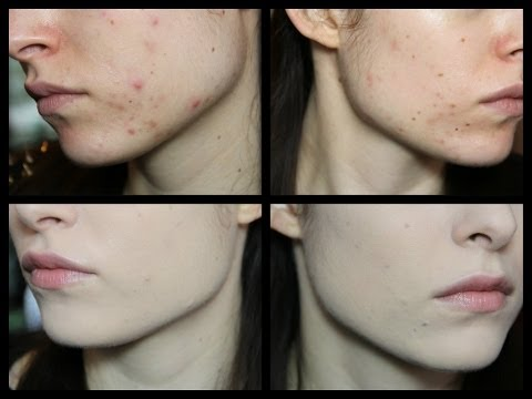 Leliminazione di pigmentary nota risposte di fototerapia