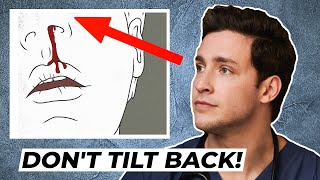 Doctor's Trick to Stop A Bloody Nose   Responding To Comments